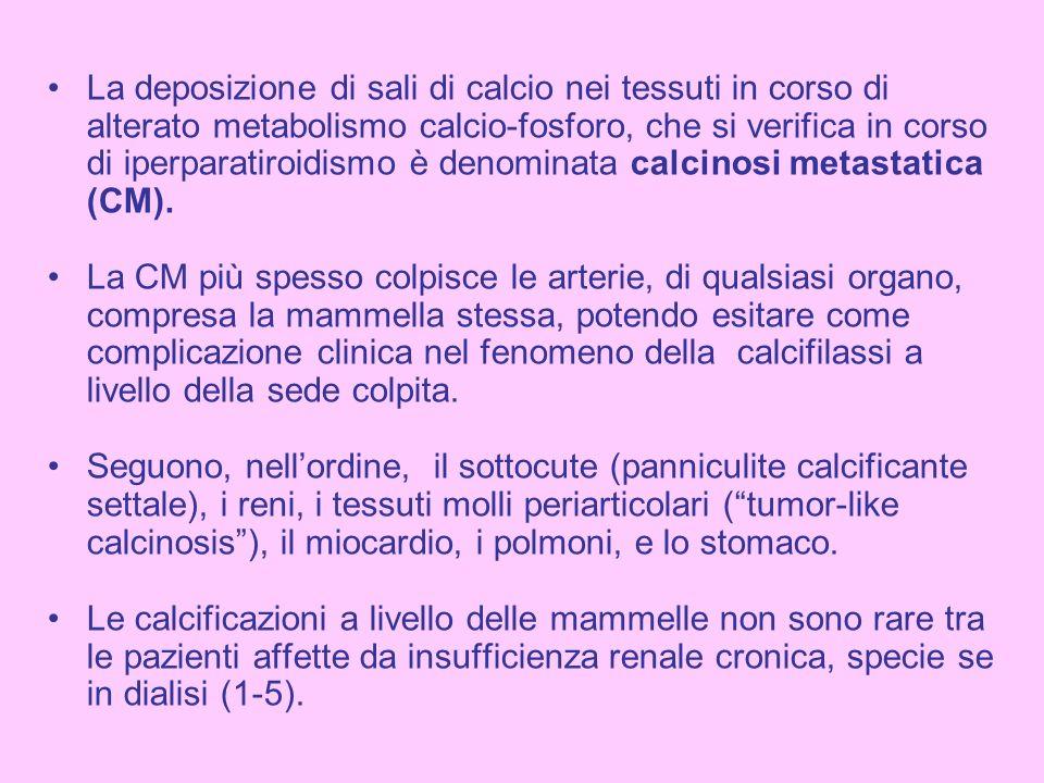 La deposizione di sali di calcio nei tessuti in corso di alterato metabolismo calcio-fosforo, che si verifica in corso di iperparatiroidismo è denominata calcinosi metastatica (CM).