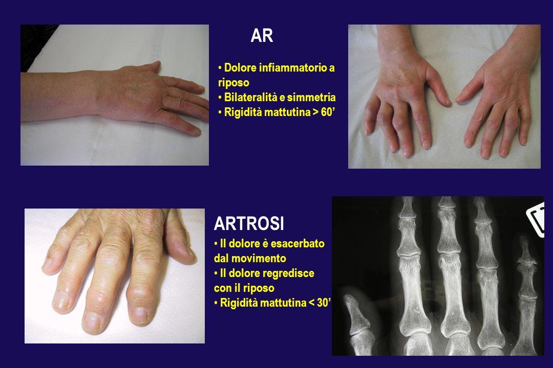 AR ARTROSI Dolore infiammatorio a riposo Bilateralità e simmetria
