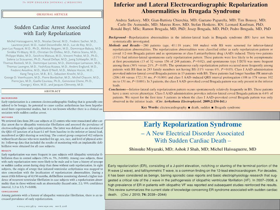 16- Ebbene Haisseguerre nel 2008 ha indicato nella Early Repolarization l'anello di congiunzione tra F.V. idiopatica e Sindrome di Brugada.