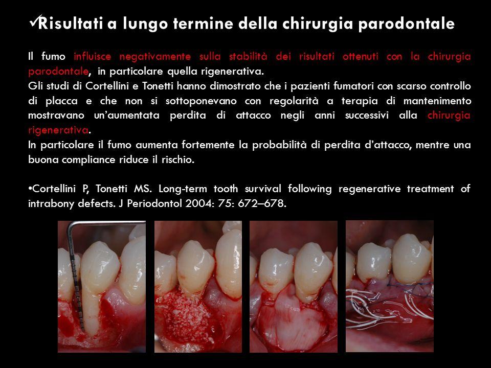 Risultati a lungo termine della chirurgia parodontale