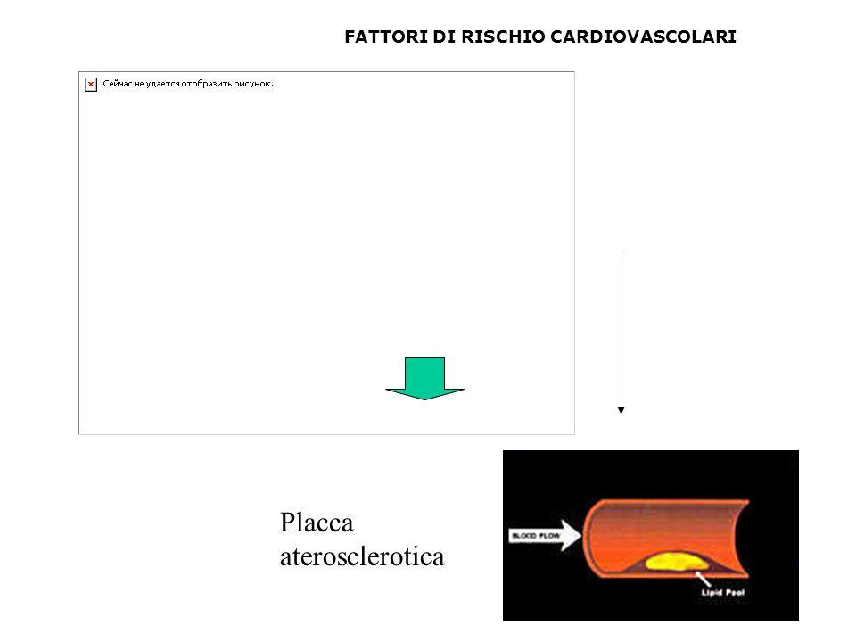 Placca aterosclerotica