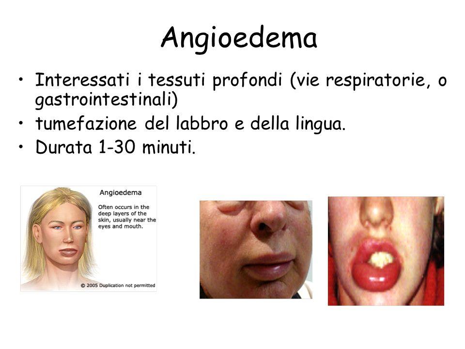 Angioedema Interessati i tessuti profondi (vie respiratorie, o gastrointestinali) tumefazione del labbro e della lingua.