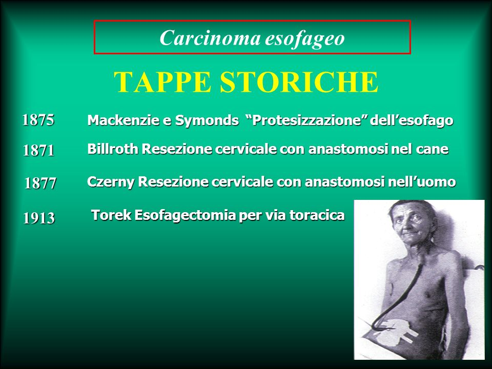 TAPPE STORICHE Carcinoma esofageo 1875 1871 1877 1913