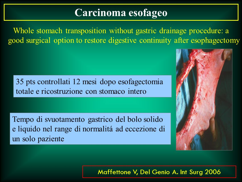 Carcinoma esofageo Whole stomach transposition without gastric drainage procedure: a.