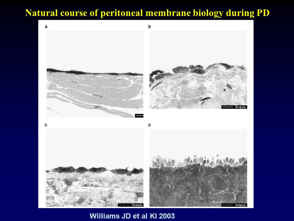 Natural course of peritoneal membrane biology during PD