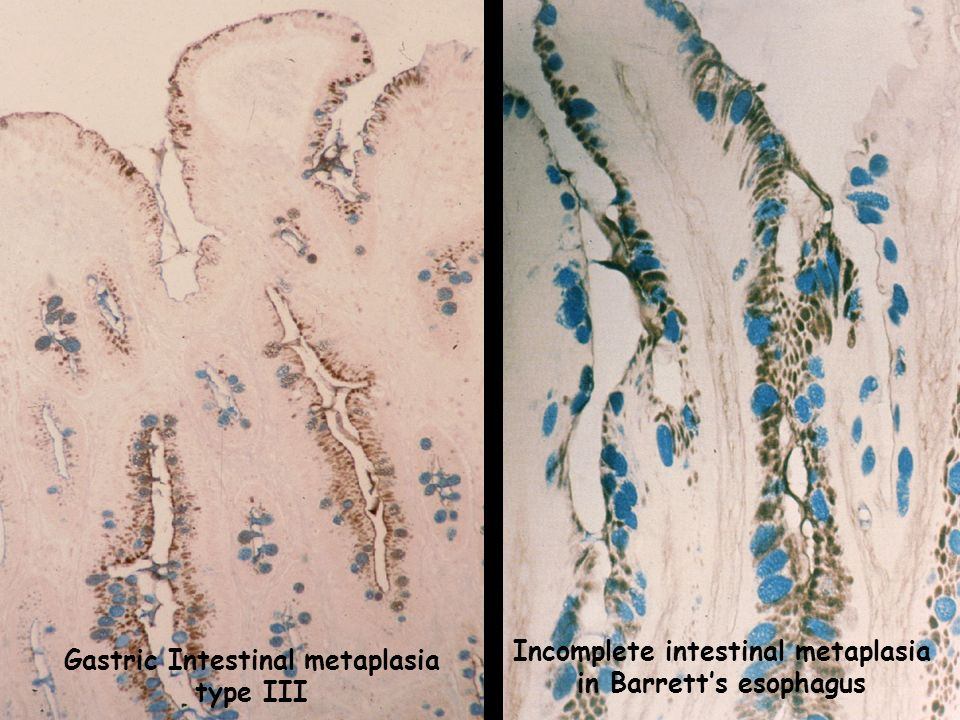 Incomplete intestinal metaplasia in Barrett's esophagus