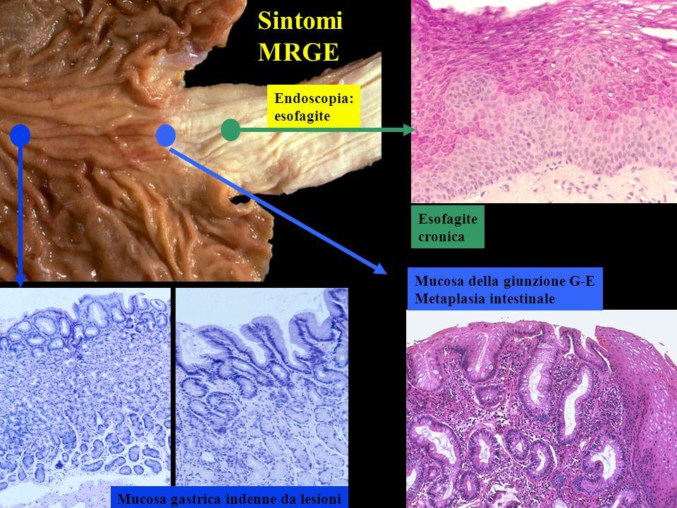 Sintomi MRGE Endoscopia: esofagite Esofagite cronica