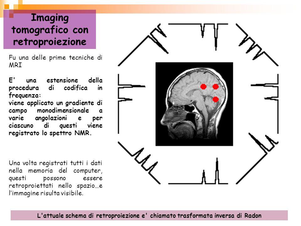 Imaging tomografico con retroproiezione