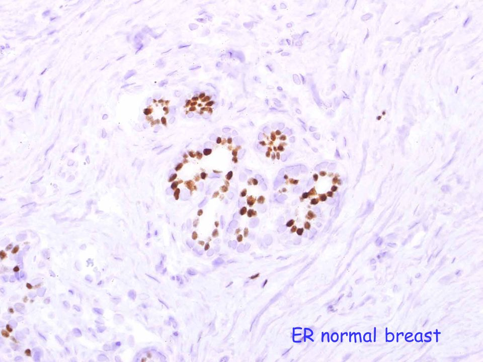 ER normal breast