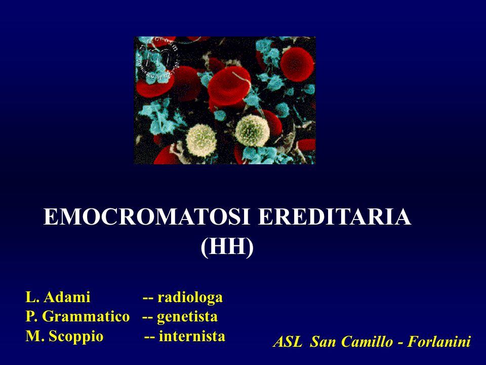 EMOCROMATOSI EREDITARIA ASL San Camillo - Forlanini