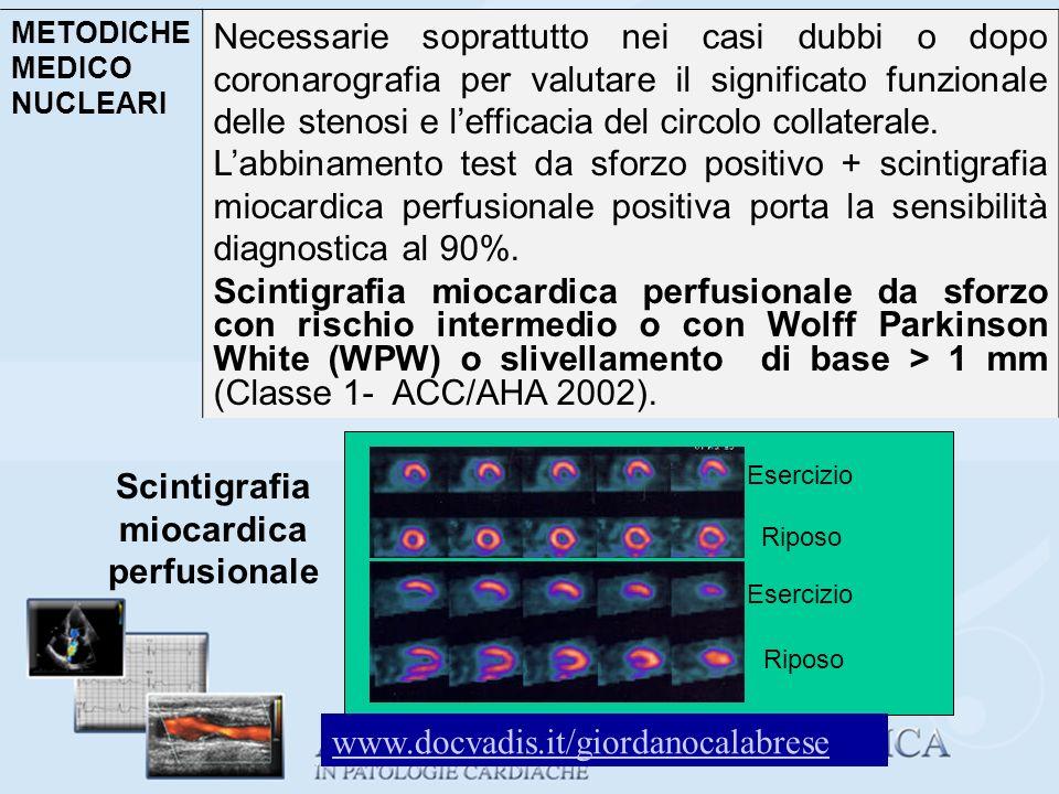 Scintigrafia miocardica perfusionale