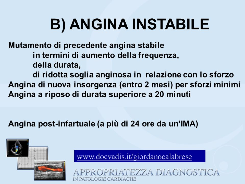 B) ANGINA INSTABILE Mutamento di precedente angina stabile