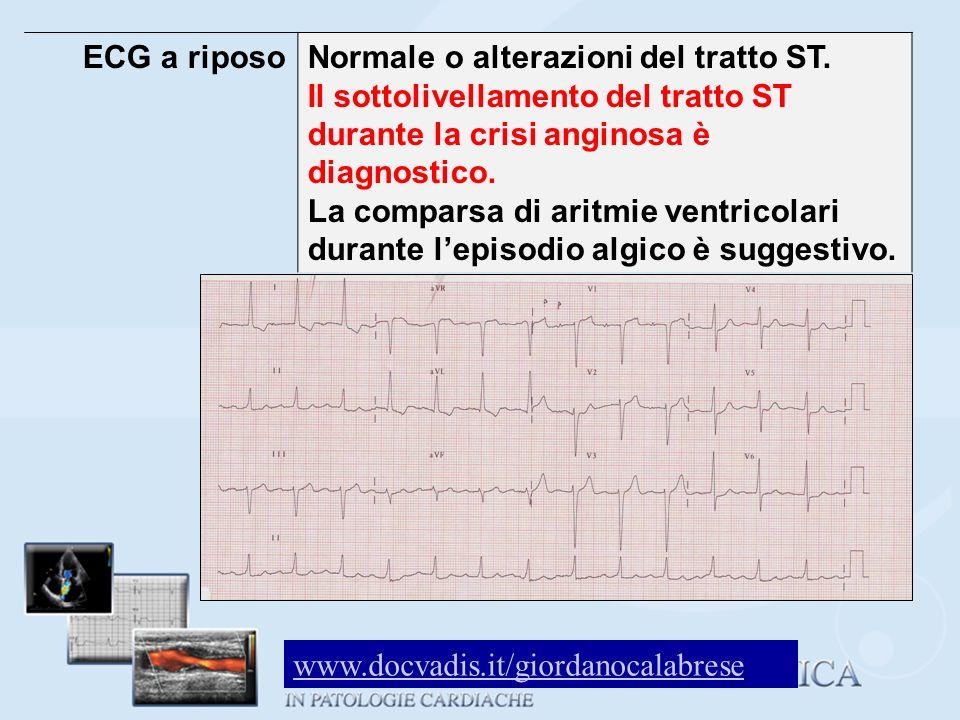 ECG a riposo Normale o alterazioni del tratto ST. Il sottolivellamento del tratto ST durante la crisi anginosa è diagnostico.