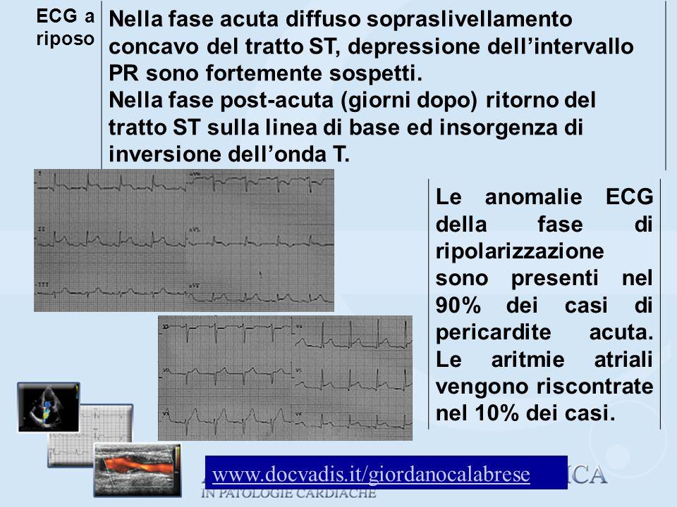 ECG a riposo Nella fase acuta diffuso sopraslivellamento concavo del tratto ST, depressione dell'intervallo PR sono fortemente sospetti.