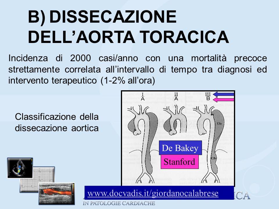 B) DISSECAZIONE DELL'AORTA TORACICA