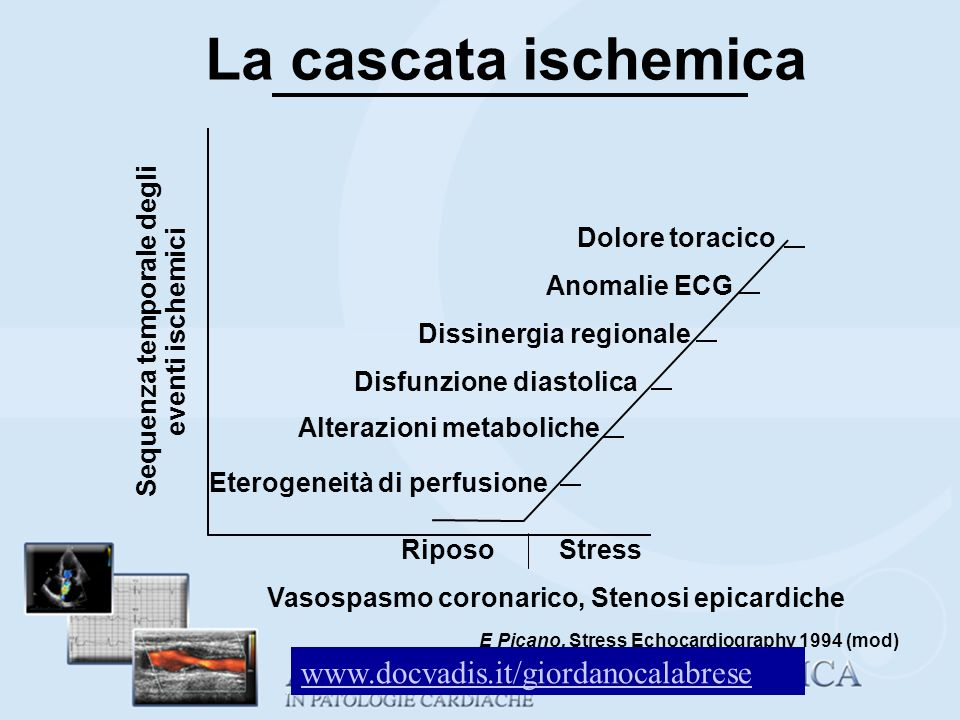 La cascata ischemica www.docvadis.it/giordanocalabrese Dolore toracico