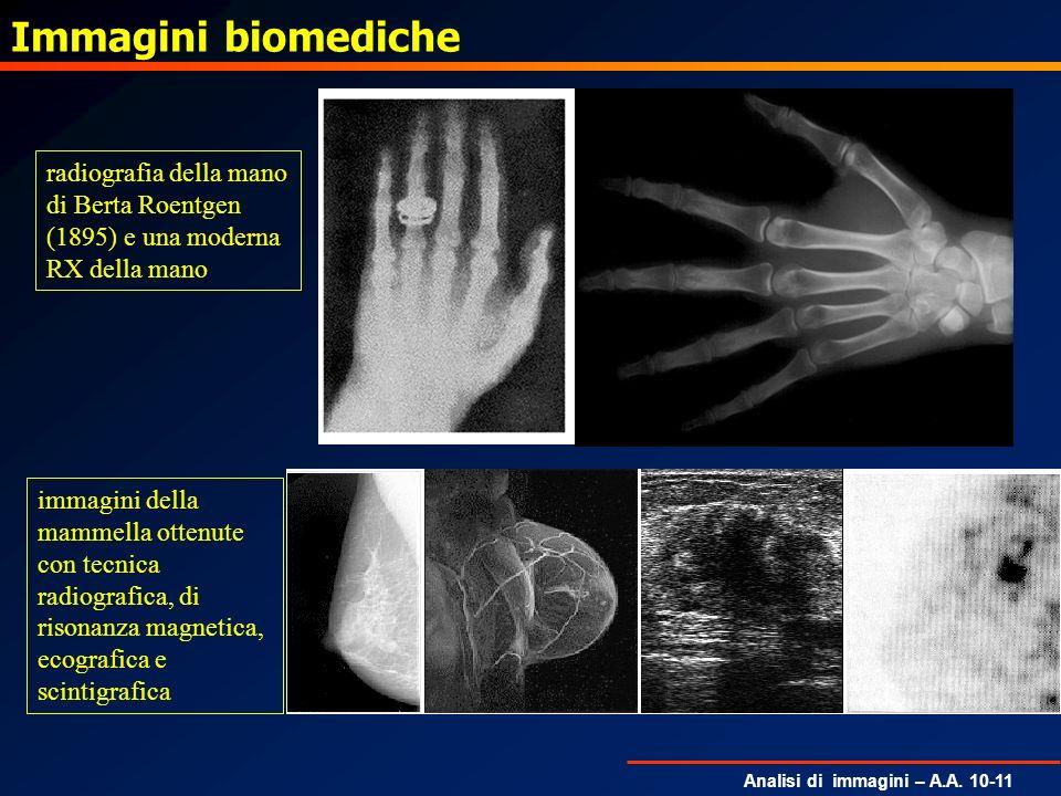 Immagini biomedicheradiografia della mano di Berta Roentgen (1895) e una moderna RX della mano.