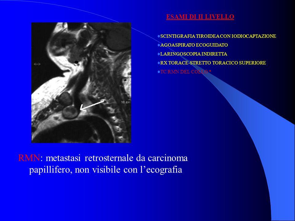 ESAMI DI II LIVELLO SCINTIGRAFIA TIROIDEA CON IODIOCAPTAZIONE. AGOASPIRATO ECOGUIDATO. LARINGOSCOPIA INDIRETTA.