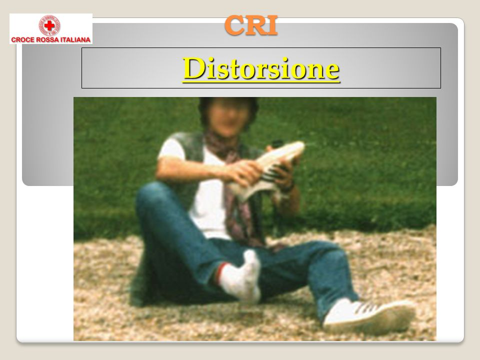 CRI Distorsione