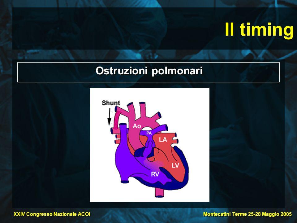 Il timing Ostruzioni polmonari