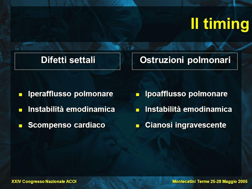 Il timing Difetti settali Ostruzioni polmonari Iperafflusso polmonare