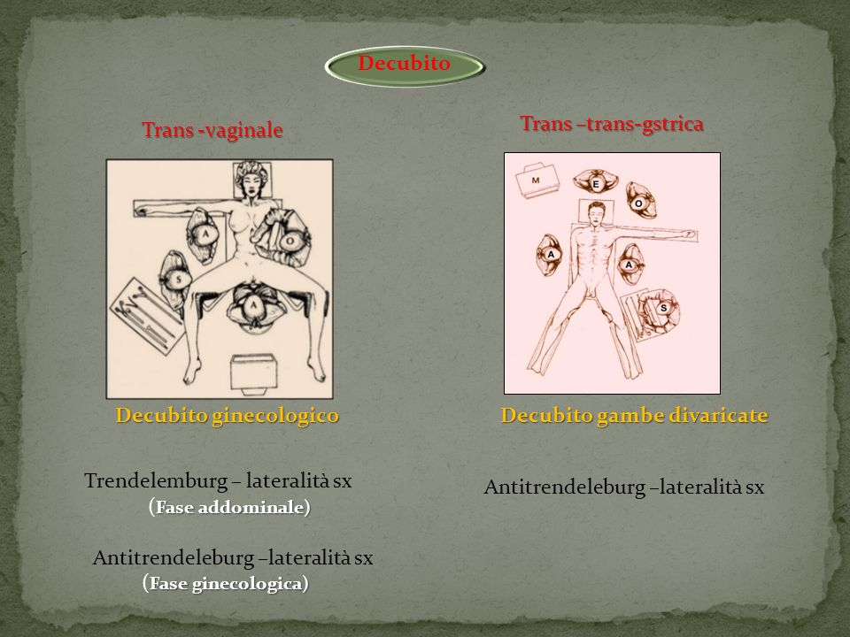 Antitrendeleburg –lateralità sx (Fase ginecologica)