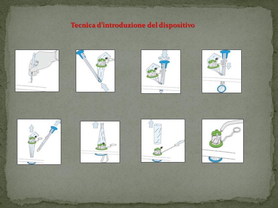 Tecnica d'introduzione del dispositivo