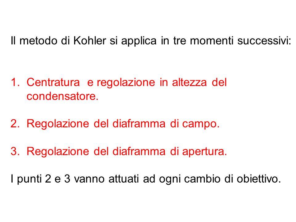 Il metodo di Kohler si applica in tre momenti successivi: