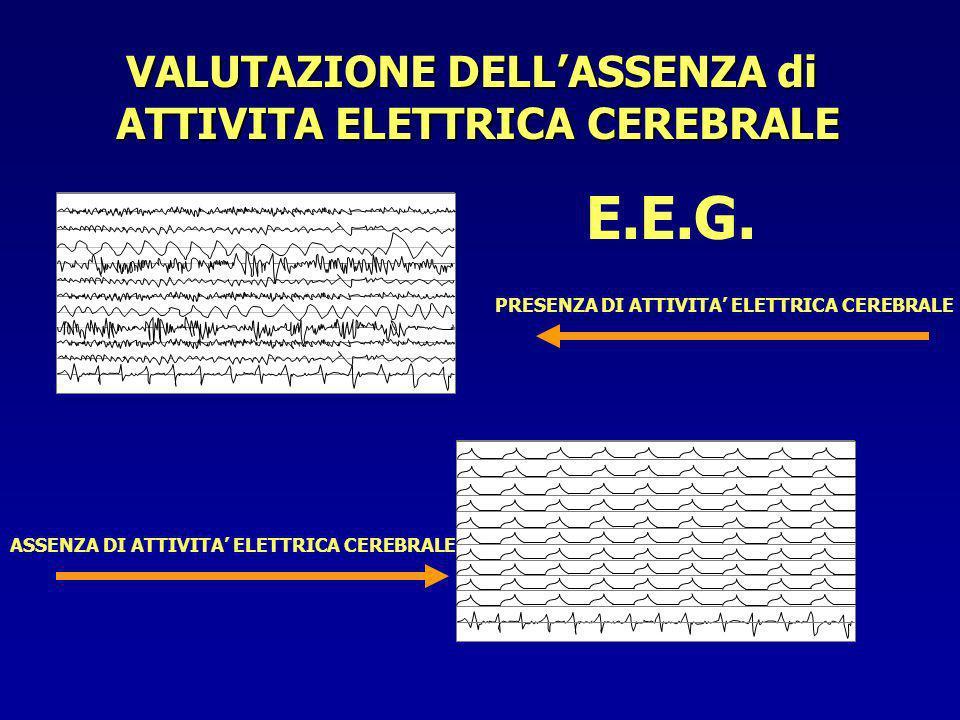 VALUTAZIONE DELL'ASSENZA di ATTIVITA ELETTRICA CEREBRALE
