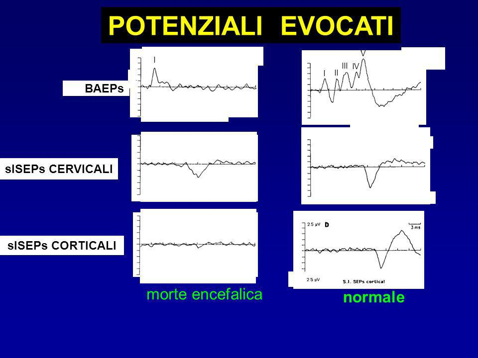 POTENZIALI EVOCATI morte encefalica normale BAEPs slSEPs CERVICALI