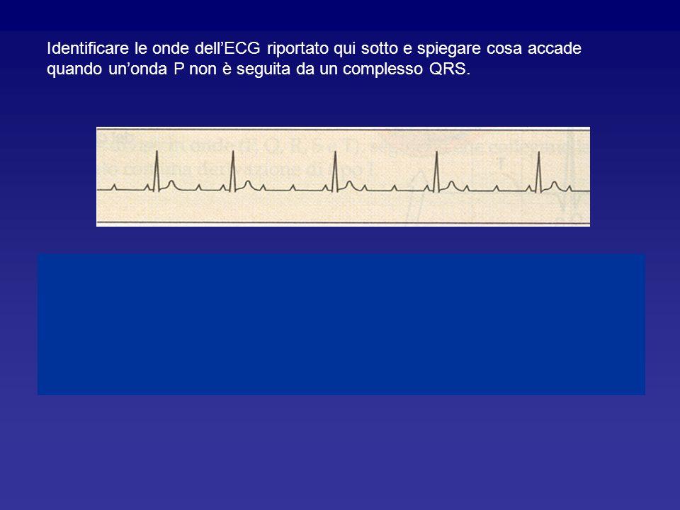 Identificare le onde dell'ECG riportato qui sotto e spiegare cosa accade quando un'onda P non è seguita da un complesso QRS.