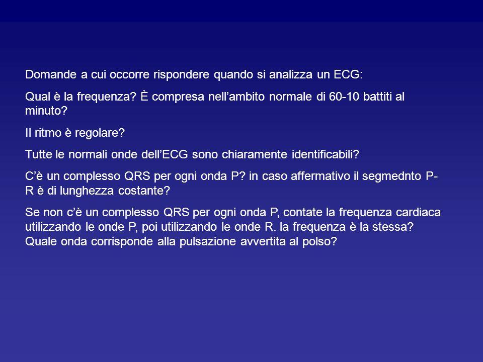 Domande a cui occorre rispondere quando si analizza un ECG: