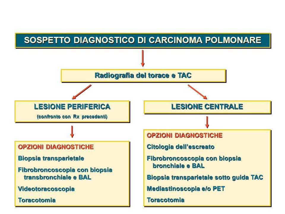 SOSPETTO DIAGNOSTICO DI CARCINOMA POLMONARE
