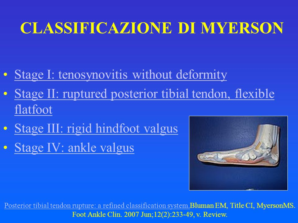 CLASSIFICAZIONE DI MYERSON