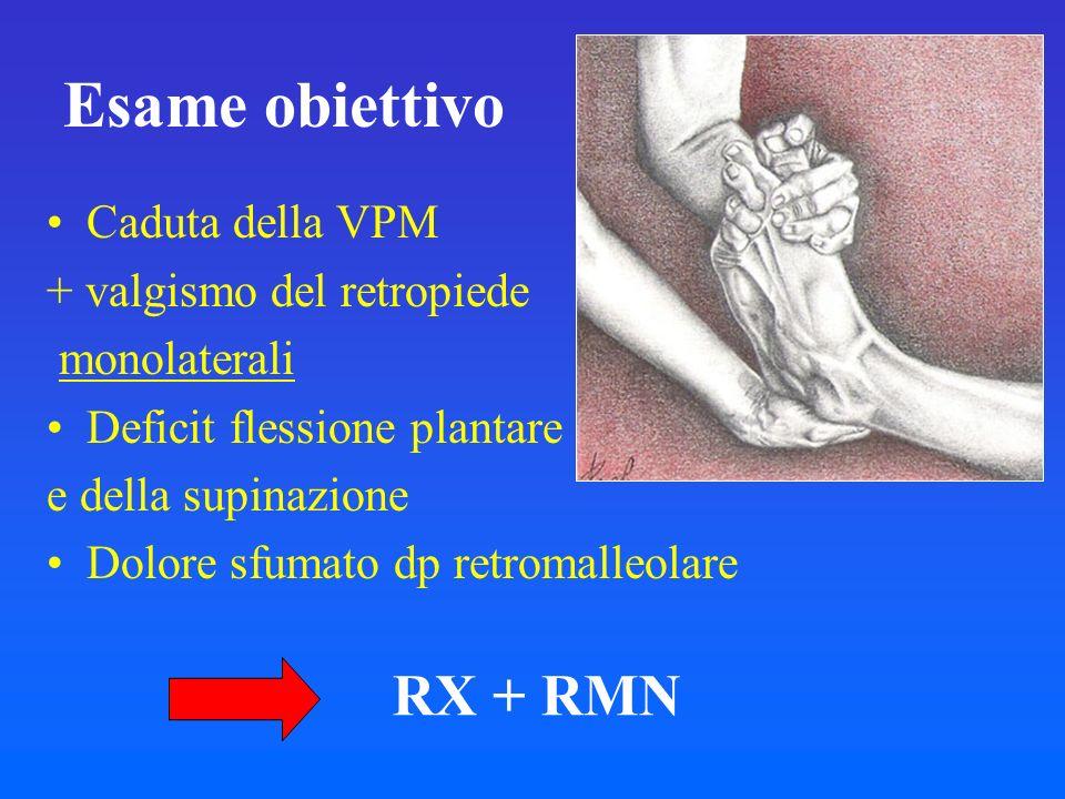 Esame obiettivo RX + RMN Caduta della VPM + valgismo del retropiede