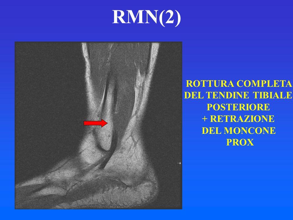 RMN(2) ROTTURA COMPLETA DEL TENDINE TIBIALE POSTERIORE + RETRAZIONE