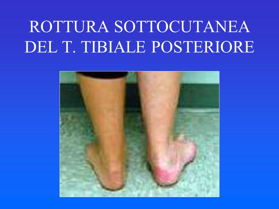 ROTTURA SOTTOCUTANEA DEL T. TIBIALE POSTERIORE