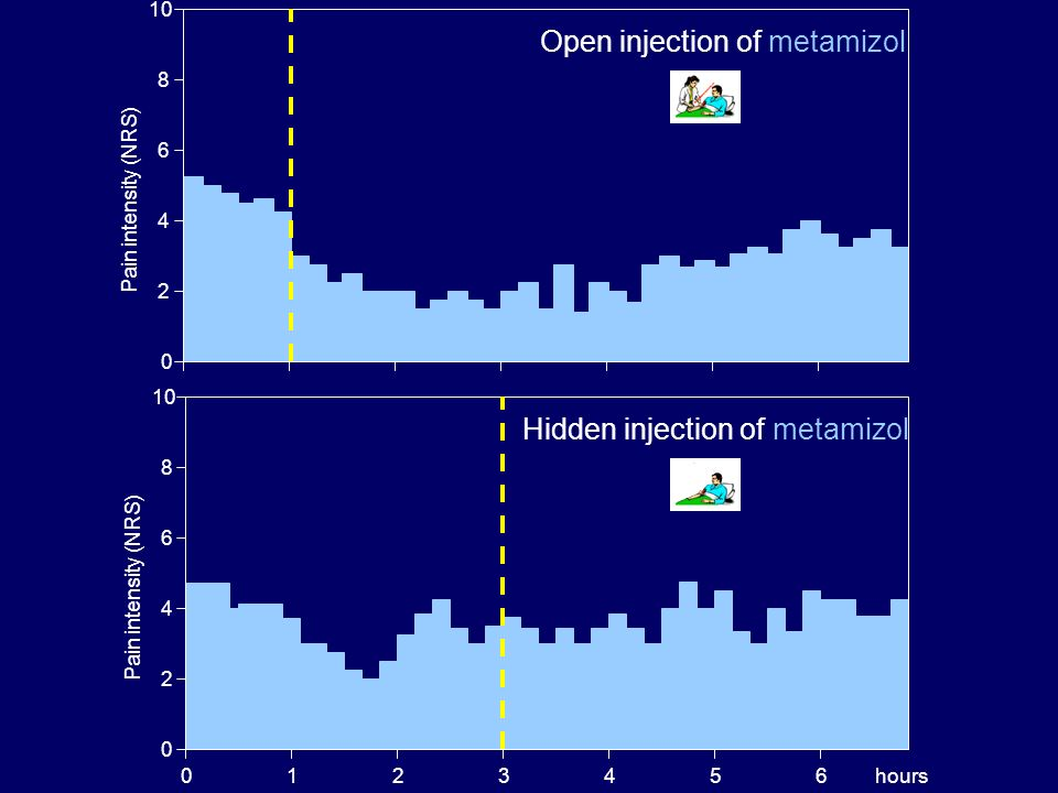 Open injection of metamizol
