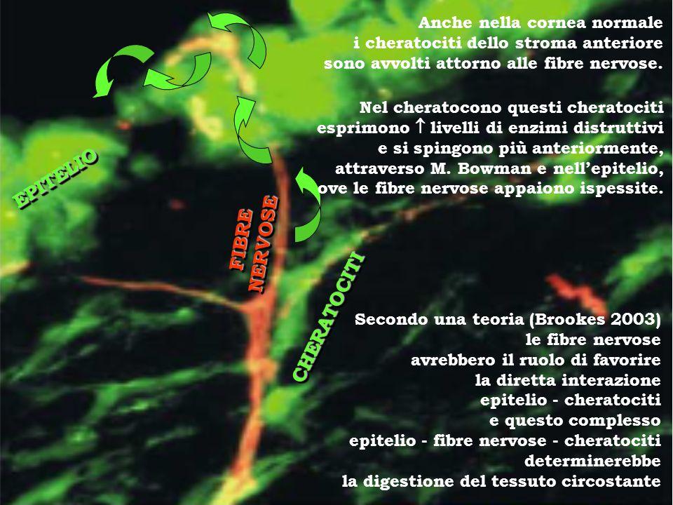 EPITELIO FIBRE NERVOSE CHERATOCITI Anche nella cornea normale