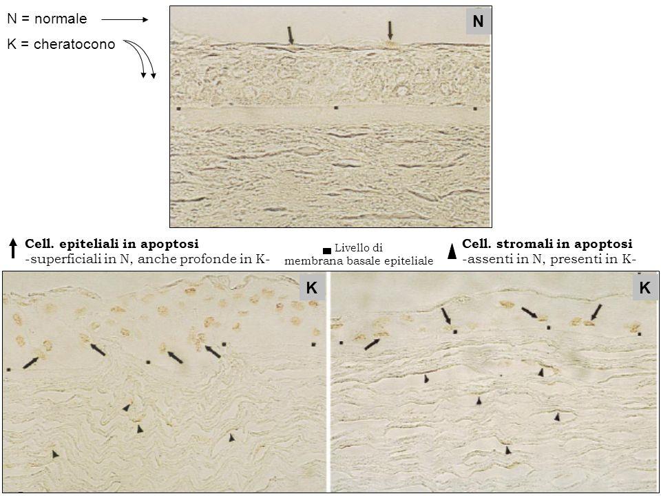 membrana basale epiteliale