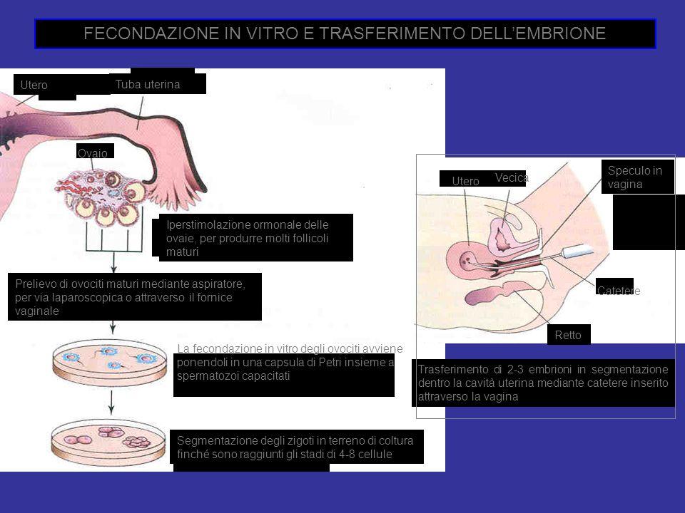 FECONDAZIONE IN VITRO E TRASFERIMENTO DELL'EMBRIONE