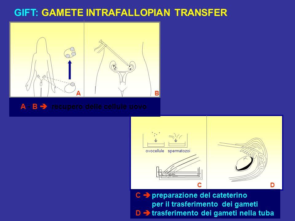 GIFT: GAMETE INTRAFALLOPIAN TRANSFER
