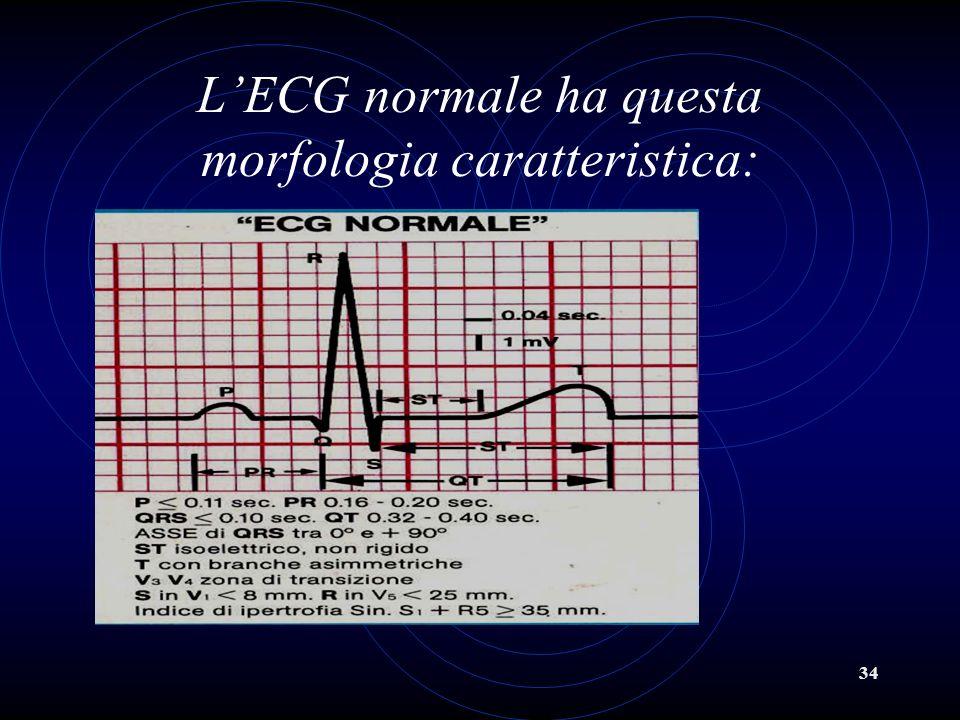 L'ECG normale ha questa morfologia caratteristica: