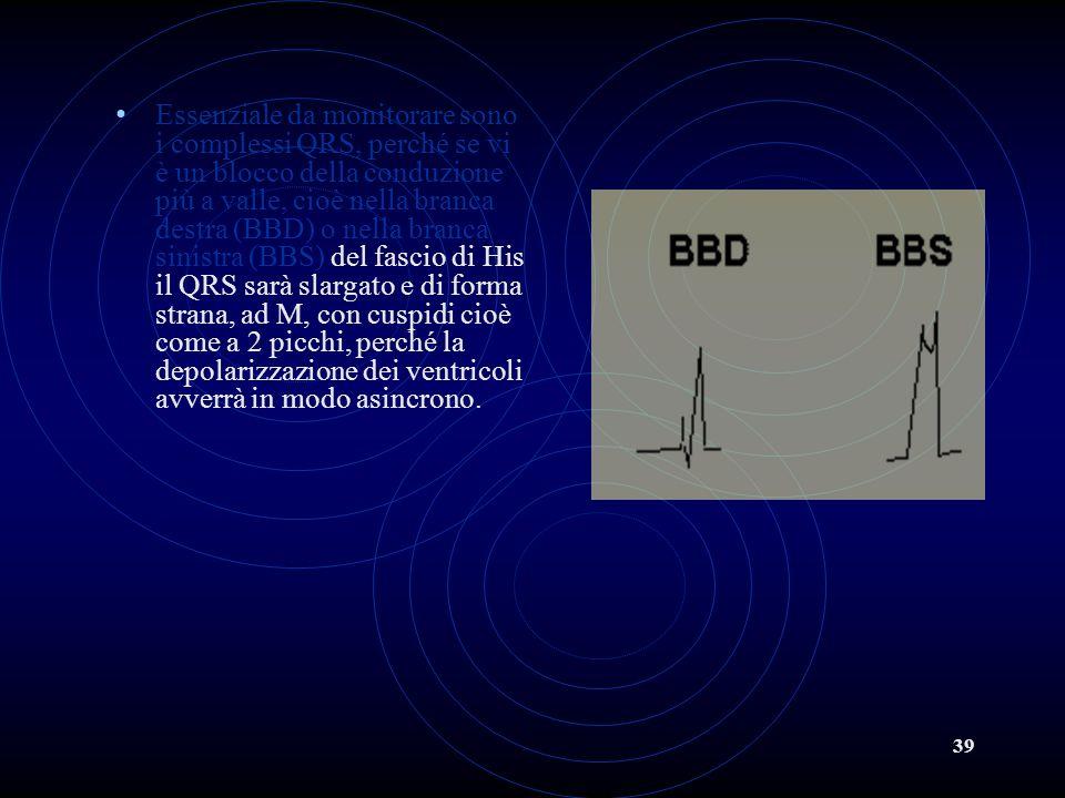 Essenziale da monitorare sono i complessi QRS, perché se vi è un blocco della conduzione più a valle, cioè nella branca destra (BBD) o nella branca sinistra (BBS) del fascio di His il QRS sarà slargato e di forma strana, ad M, con cuspidi cioè come a 2 picchi, perché la depolarizzazione dei ventricoli avverrà in modo asincrono.