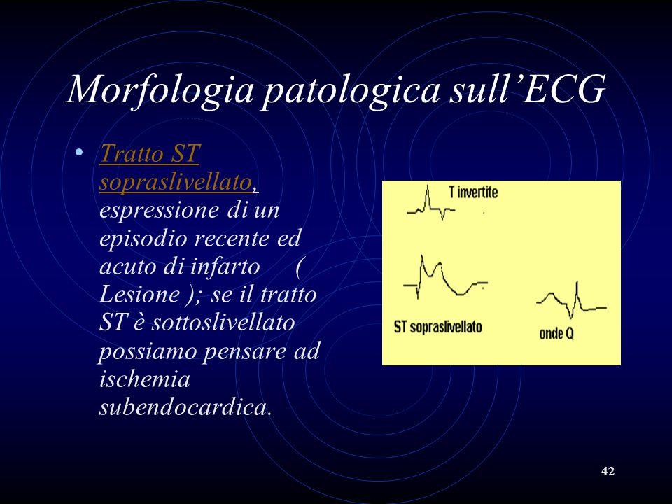 Morfologia patologica sull'ECG