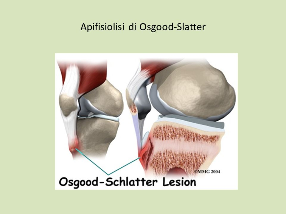 Apifisiolisi di Osgood-Slatter