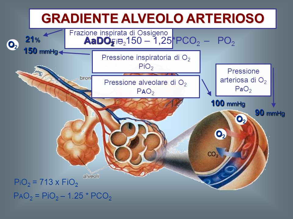 GRADIENTE ALVEOLO ARTERIOSO
