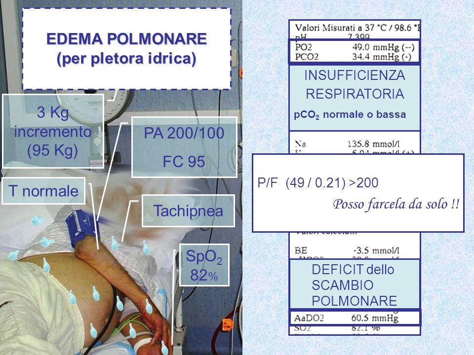 EDEMA POLMONARE (per pletora idrica)