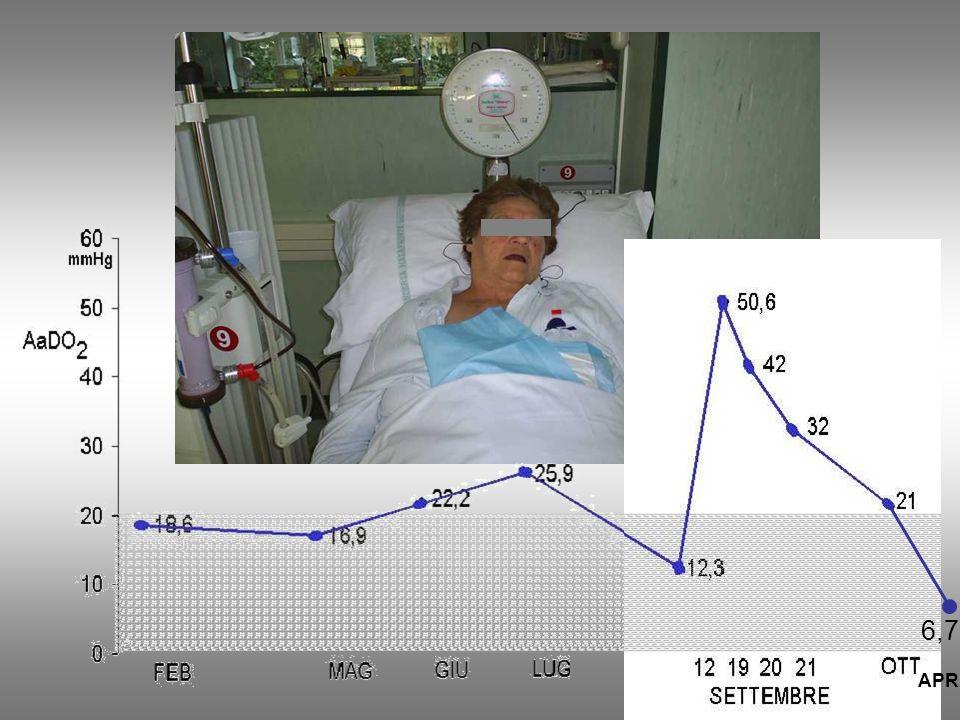 L'AaDO2 aumenta improvvisamente nelle patologie respiratorie acute coinvolgenti il parenchima polmonare e nell'edema polmonare cardiogeno. Il monitoraggio almeno mensile, ne consente la corretta interpretazione.