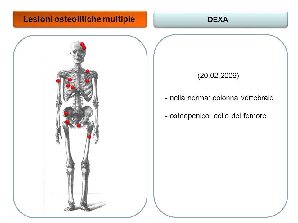 Lesioni osteolitiche multiple